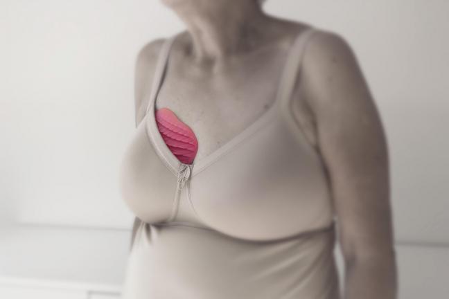 """""""Simpla"""", czyli jedyna w swoim rodzaju proteza piersi"""